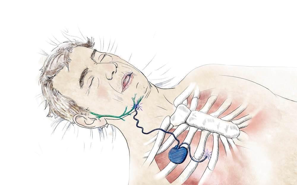 Discover How Technology Can Help With Sleep Apnea